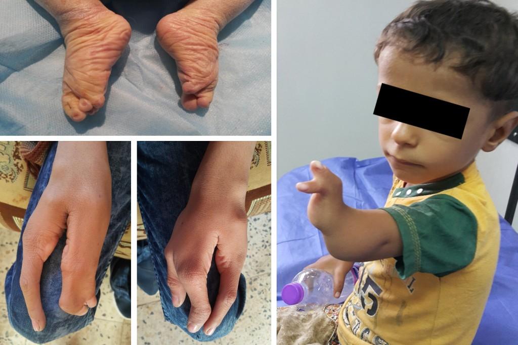 Crianças nascidas no Iraque perto de base militar norte-americana têm 'deformidades congênitas graves'